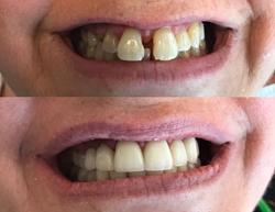 Tijuana Dental Implants